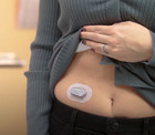 System dla diabetyków Dexcom G6 to wygoda i bezpieczeńtwo.